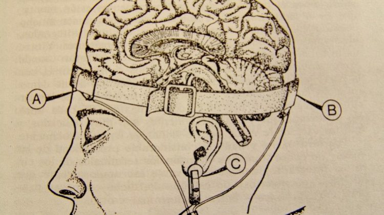 Neuromarketing? Ask Me What You Want to Know. Part 1: EEG